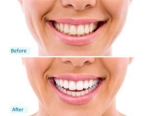 Dentsmile International